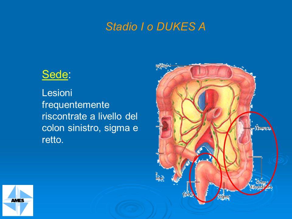 Sede: Lesioni frequentemente riscontrate a livello del colon sinistro, sigma e retto. Stadio I o DUKES A