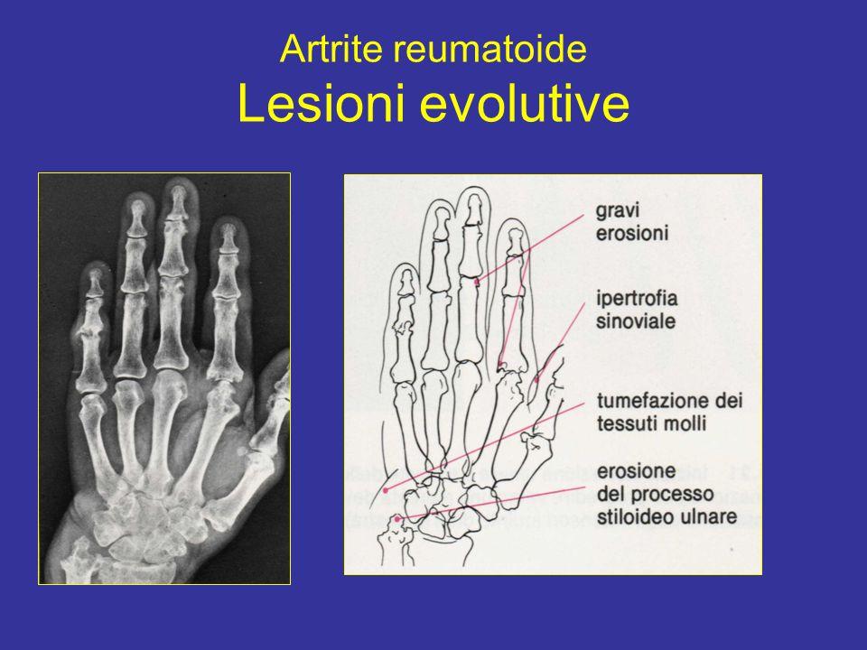 Artrite reumatoide Lesioni evolutive
