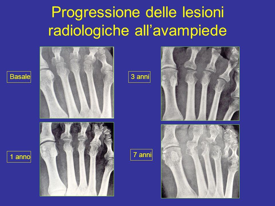 Progressione delle lesioni radiologiche allavampiede Basale 1 anno 3 anni 7 anni