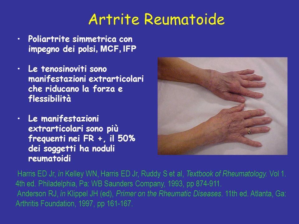 Artrite Reumatoide Poliartrite simmetrica con impegno dei polsi, MCF, IFP Le tenosinoviti sono manifestazioni extrarticolari che riducano la forza e flessibilità Le manifestazioni extrarticolari sono più frequenti nei FR +, il 50% dei soggetti ha noduli reumatoidi Harris ED Jr, in Kelley WN, Harris ED Jr, Ruddy S et al, Textbook of Rheumatology.