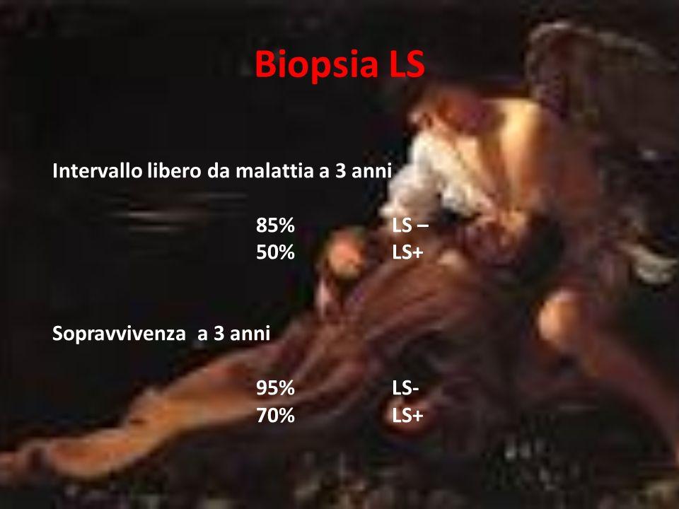 LS + in relazione allo spessore del melanoma Spessore 1-2 mmLS+ 10-15% Spessore 2-4 mmLS+ 30-35% Spessore > 4 mmLS+ 40-55% Sono stati riportati casi con LS + anche per melanomi < 1mm Spessore < 0,75mmLS+ 1,5-2% Spessore 0,75-1 mmLS+ 5%
