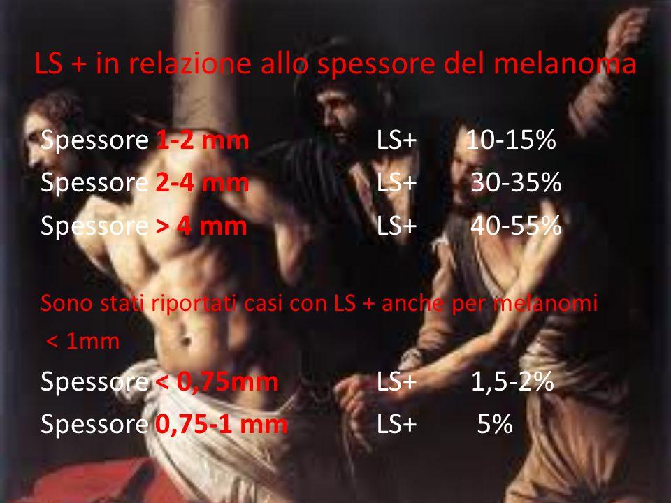 LS + in relazione allo spessore del melanoma Spessore 1-2 mmLS+ 10-15% Spessore 2-4 mmLS+ 30-35% Spessore > 4 mmLS+ 40-55% Sono stati riportati casi c