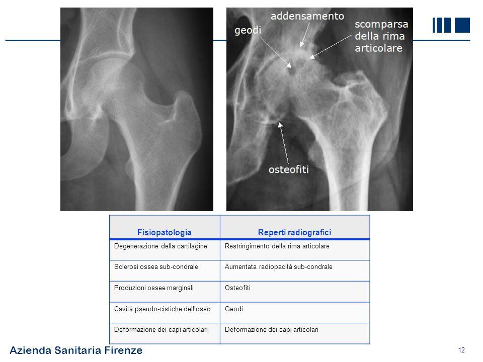 Azienda Sanitaria Firenze 12 FisiopatologiaReperti radiografici Degenerazione della cartilagineRestringimento della rima articolare Sclerosi ossea sub