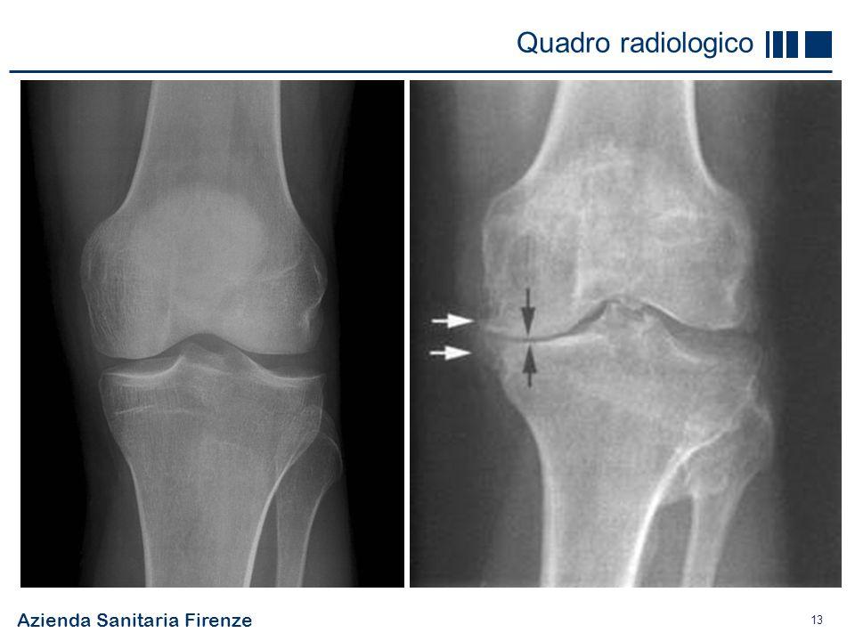 Azienda Sanitaria Firenze 13 Quadro radiologico