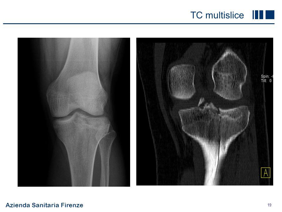 Azienda Sanitaria Firenze 19 costoso86.5 alta risoluzione+++ panoramico+++ osso+++ cartilagine+ tessuti molli++ rad. ionizzantisi ++++ TC multislice