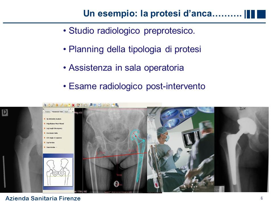 Azienda Sanitaria Firenze 6 Un esempio: la protesi danca………. Studio radiologico preprotesico. Planning della tipologia di protesi Assistenza in sala o