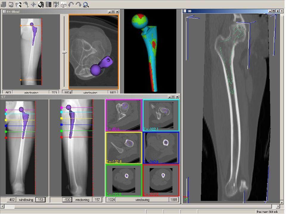 8 patologie più frequenti Protesi danca coxoartrosi primarie e secondarie ( displasia, conflitto femoro acetabolare, postumi di frattura...) frattura del collo femorale artriti (artrite reumatoide, spondilite anchilosante, artrite psoriasica...) necrosi cefalica Protesi di ginocchio gonoartrosi: primarie e secondarie artriti: artrite reumatoide (soprattutto)