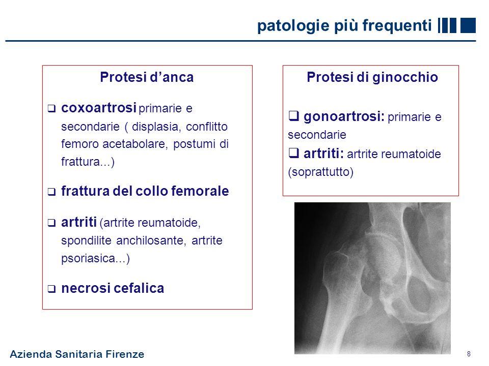 8 patologie più frequenti Protesi danca coxoartrosi primarie e secondarie ( displasia, conflitto femoro acetabolare, postumi di frattura...) frattura