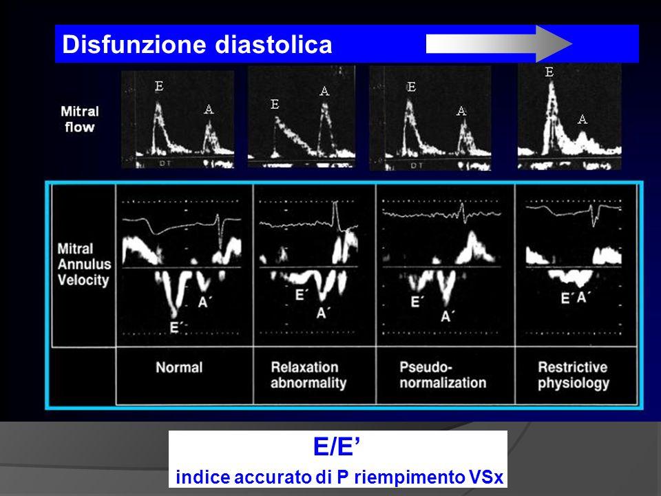E E Disfunzione diastolica E/E indice accurato di P riempimento VSx