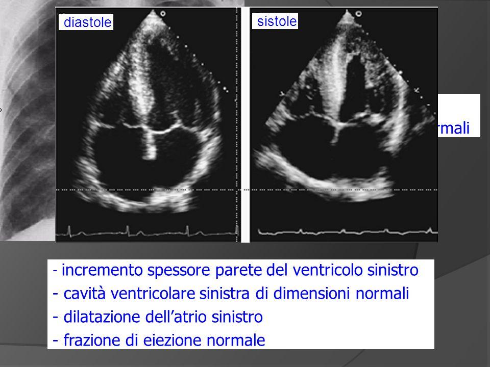 - incremento spessore parete del ventricolo sinistro - cavità ventricolare sinistra di dimensioni normali - dilatazione dellatrio sinistro - frazione di eiezione normale - congestione polmonare - cuore di dimensioni normali diastole sistole