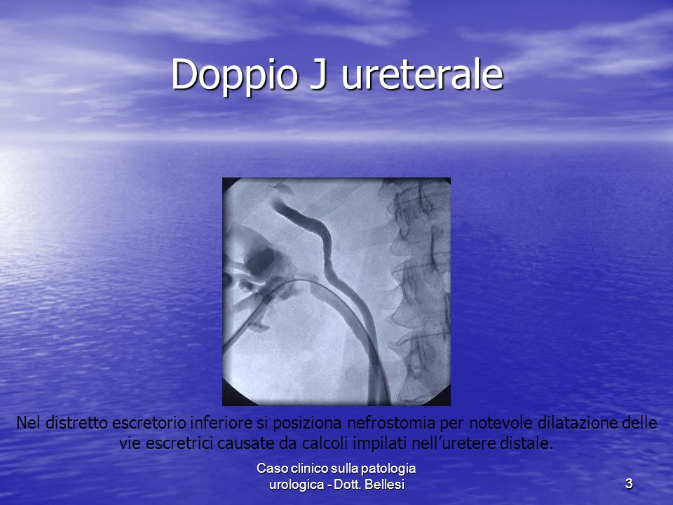 Caso clinico sulla patologia urologica - Dott. Bellesi33 Doppio J ureterale Nel distretto escretorio inferiore si posiziona nefrostomia per notevole d