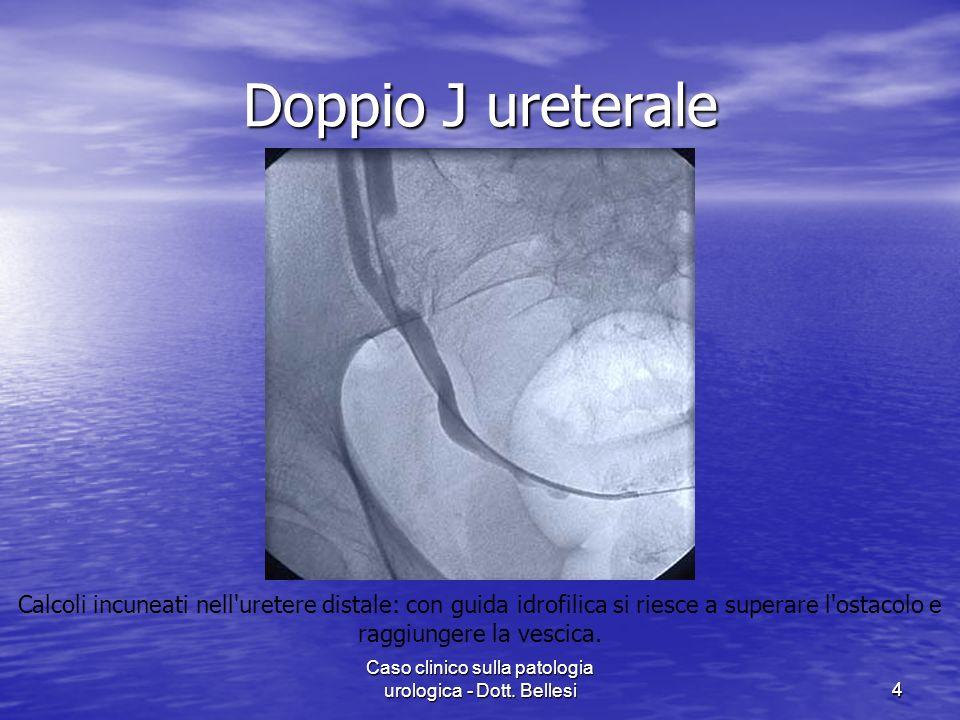 Caso clinico sulla patologia urologica - Dott. Bellesi44 Doppio J ureterale Calcoli incuneati nell'uretere distale: con guida idrofilica si riesce a s