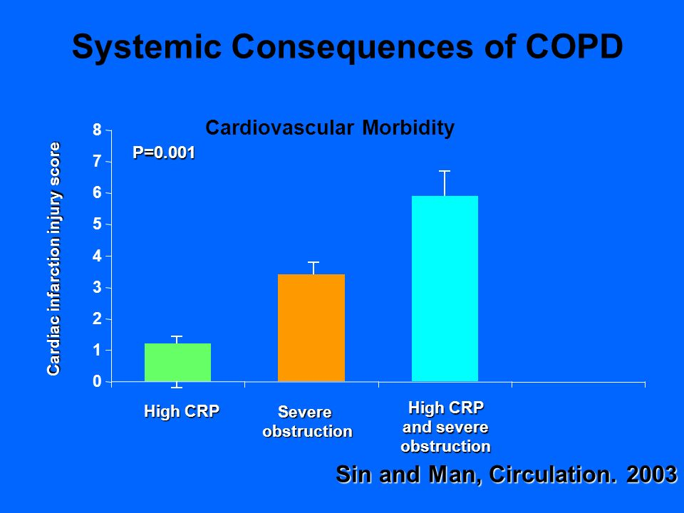 High CRP Severeobstruction and severe obstruction Cardiac infarction injury score P=0.001 Sin and Man, Circulation. 2003 0 1 2 3 4 5 6 7 8 Systemic Co