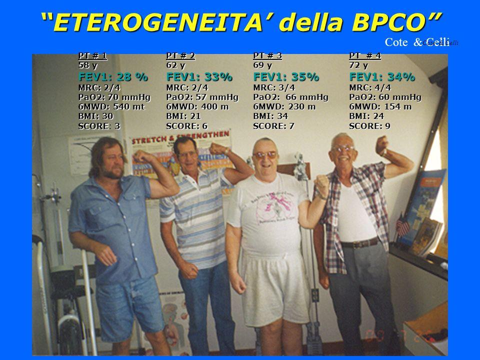 ETEROGENEITA della BPCO PT # 1 58 y FEV1: 28 % MRC: 2/4 PaO2: 70 mmHg 6MWD: 540 mt BMI: 30 SCORE3 SCORE: 3 PT # 2 62 y FEV1: 33% MRC: 2/4 PaO2: 57 mmH