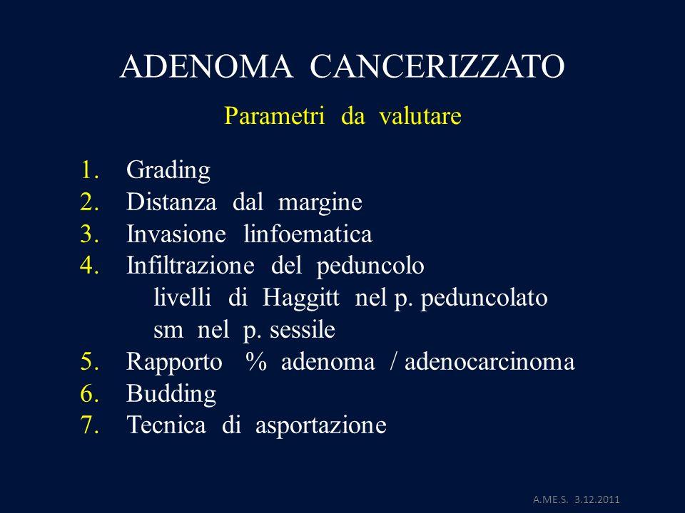 A.ME.S. 3.12.2011 ADENOMA CANCERIZZATO Parametri da valutare 1. Grading 2. Distanza dal margine 3. Invasione linfoematica 4. Infiltrazione del pedunco