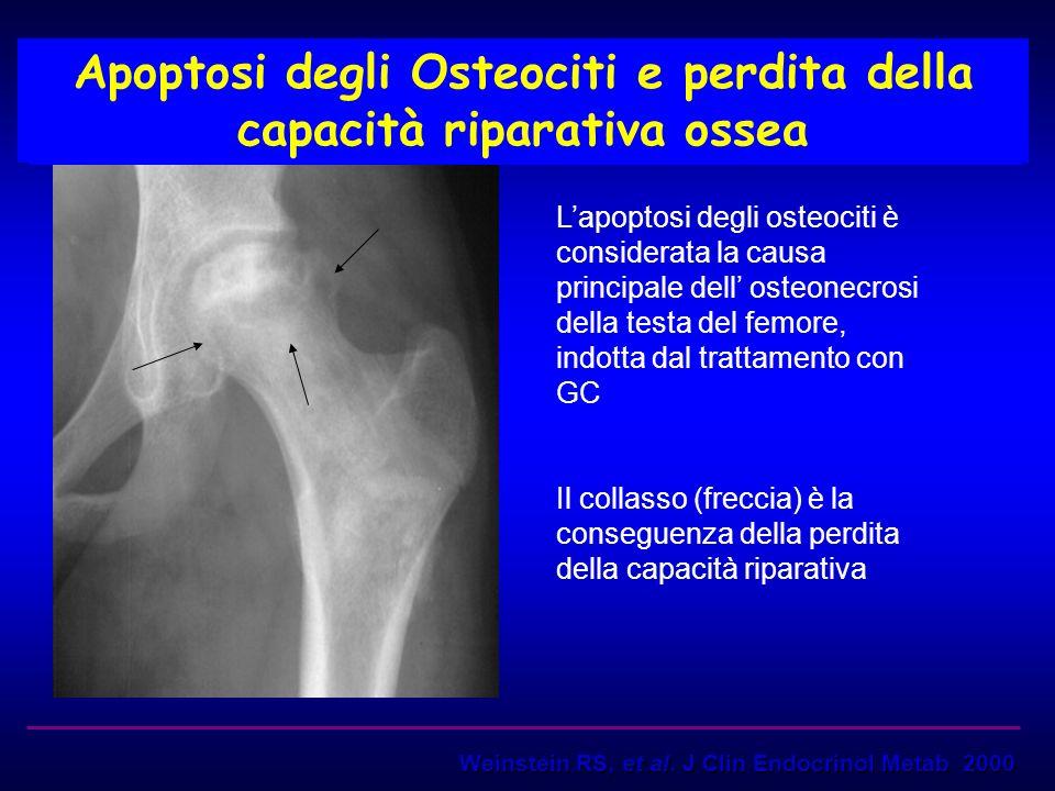 Apoptosi degli Osteociti e perdita della capacità riparativa ossea Lapoptosi degli osteociti è considerata la causa principale dell osteonecrosi della