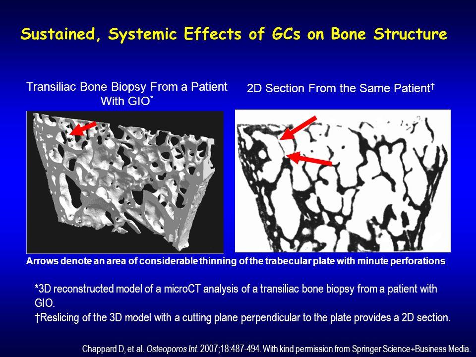 Limpatto osseo dei GC è evidenziato dagli osteociti apoptotici, intensamente luminescenti ( frecce ).