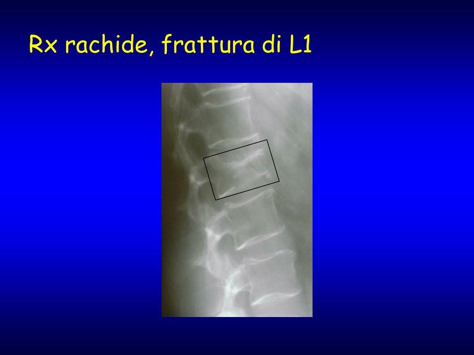 Rx rachide, frattura di L1