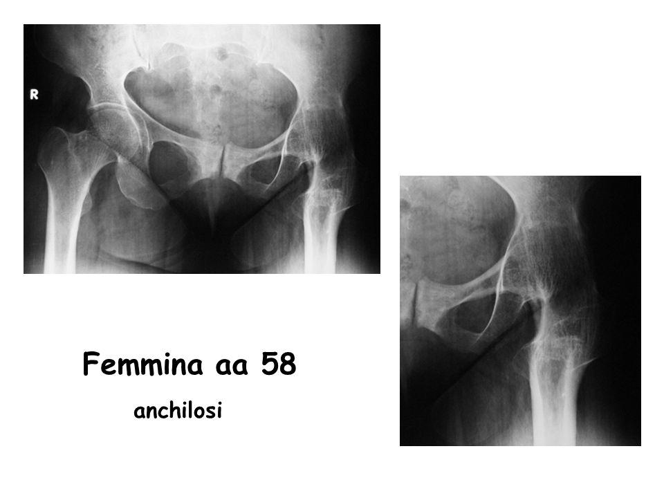 Femmina aa 58 anchilosi