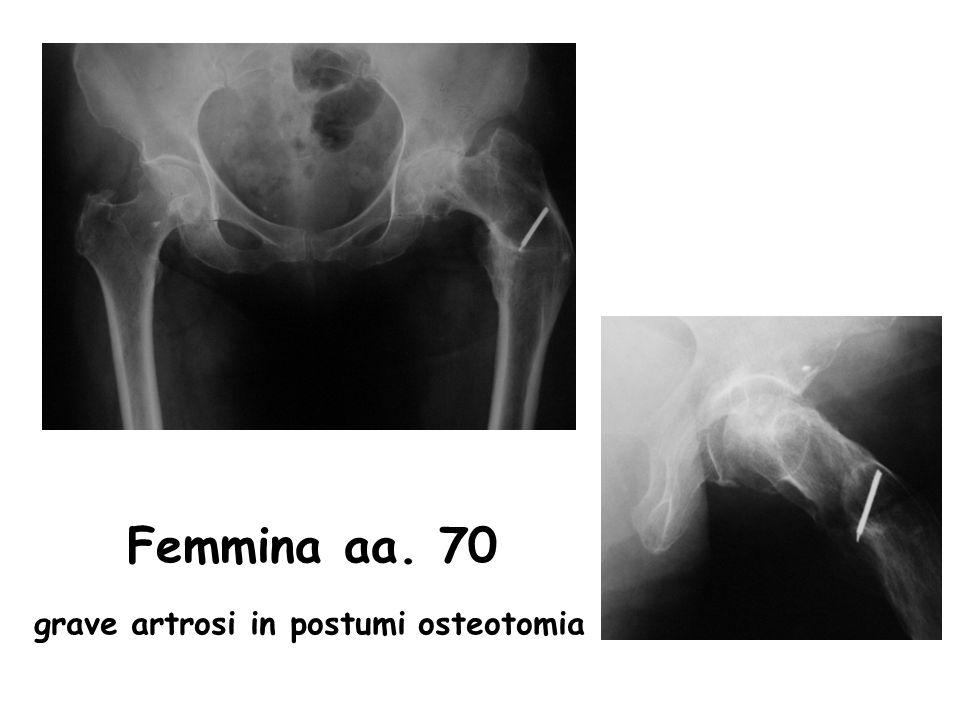 Femmina aa. 70 grave artrosi in postumi osteotomia