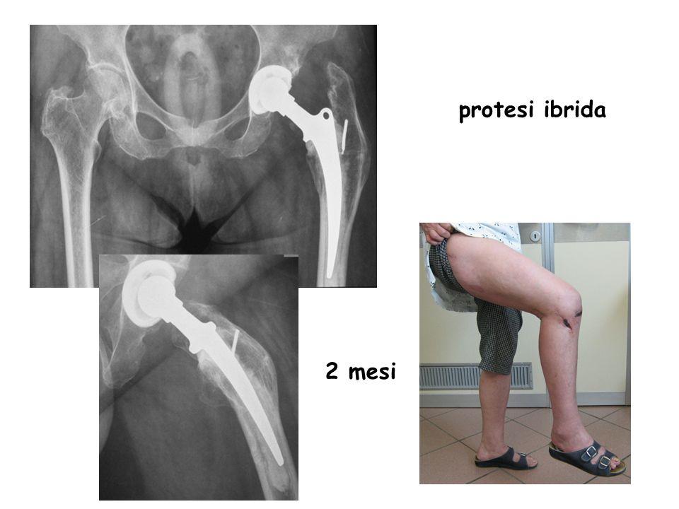 2 mesi protesi ibrida