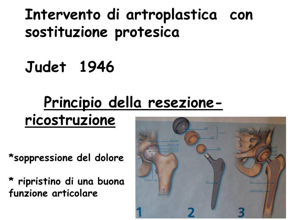 Intervento di artroplastica con sostituzione protesica Judet 1946 Principio della resezione- ricostruzione *soppressione del dolore * ripristino di una buona funzione articolare
