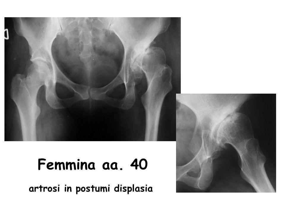 Femmina aa. 40 artrosi in postumi displasia