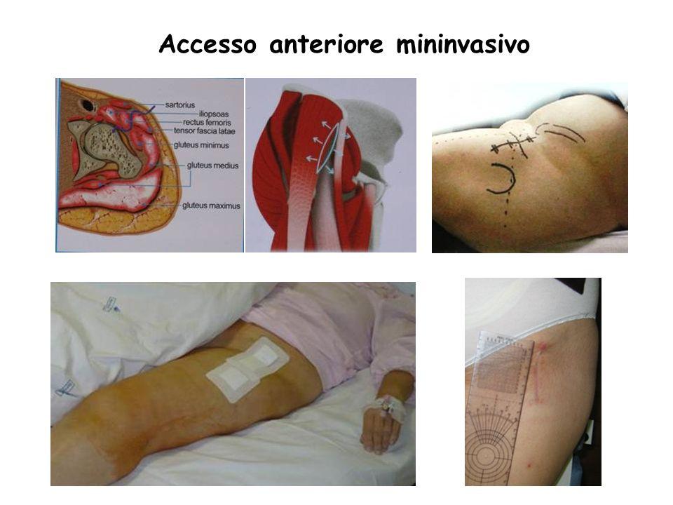 Accesso anteriore mininvasivo