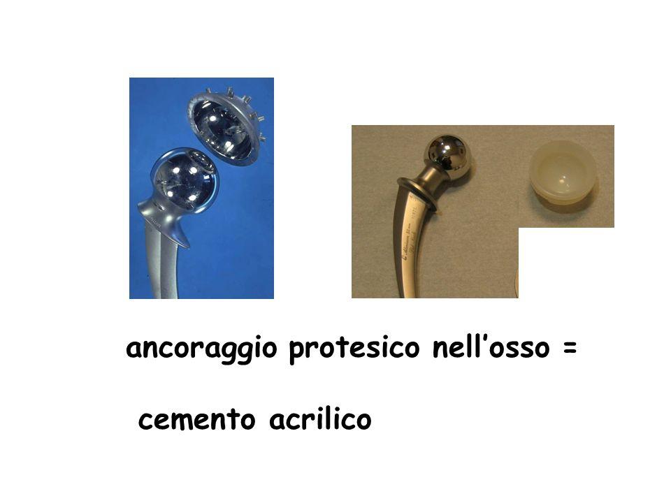 ancoraggio protesico nellosso = cemento acrilico
