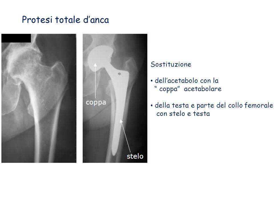 Protesi totale danca Sostituzione dellacetabolo con la coppa acetabolare della testa e parte del collo femorale con stelo e testa