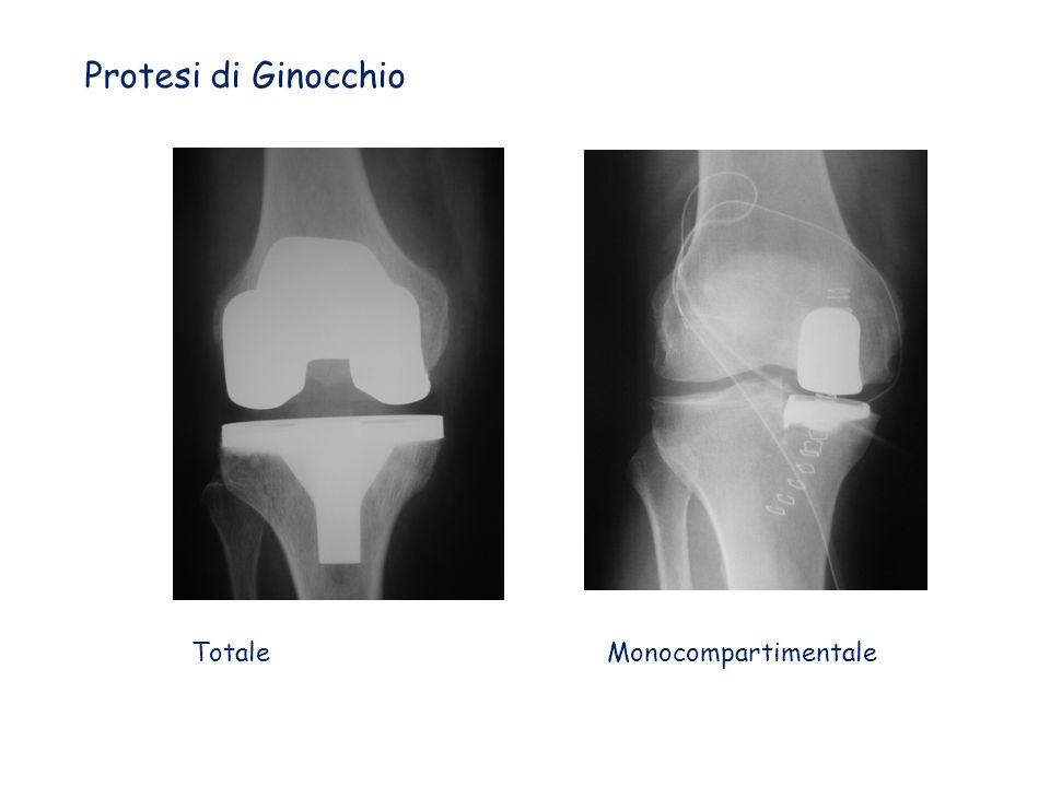 Protesi di Ginocchio Totale Monocompartimentale