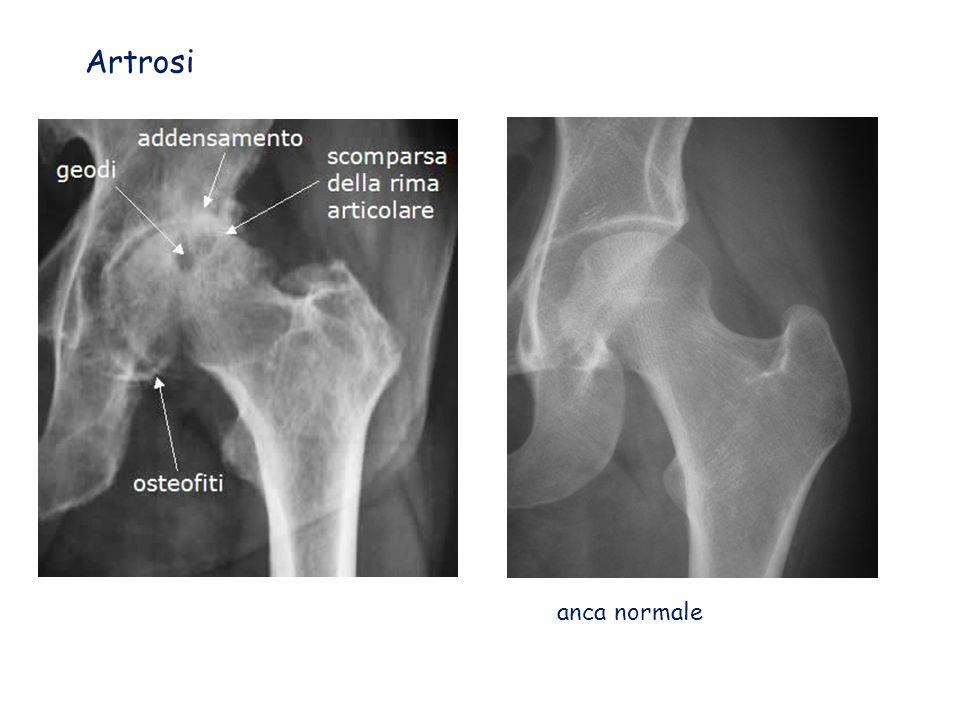 Artrosi anca normale