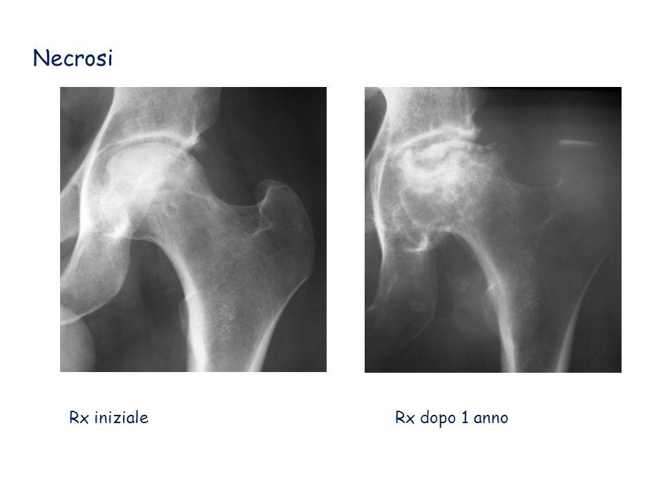 Artrosi Testa normale Testa artrosica