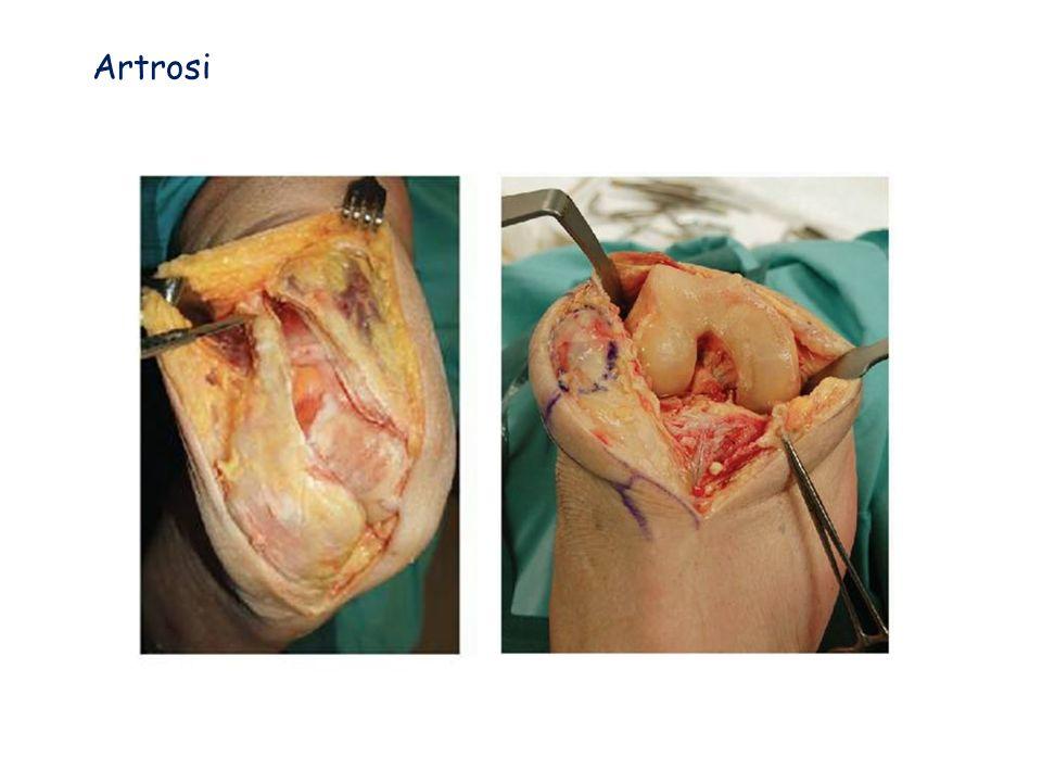 Indicazioni alla protesi danca e di ginocchio Vantaggi: Diminuzione completa del dolore anca 90% ginocchio 80% Ripresa funzionale rapida con aumento dellescursione articolare Migliora la qualità della vita e la soddisfazione del Paziente