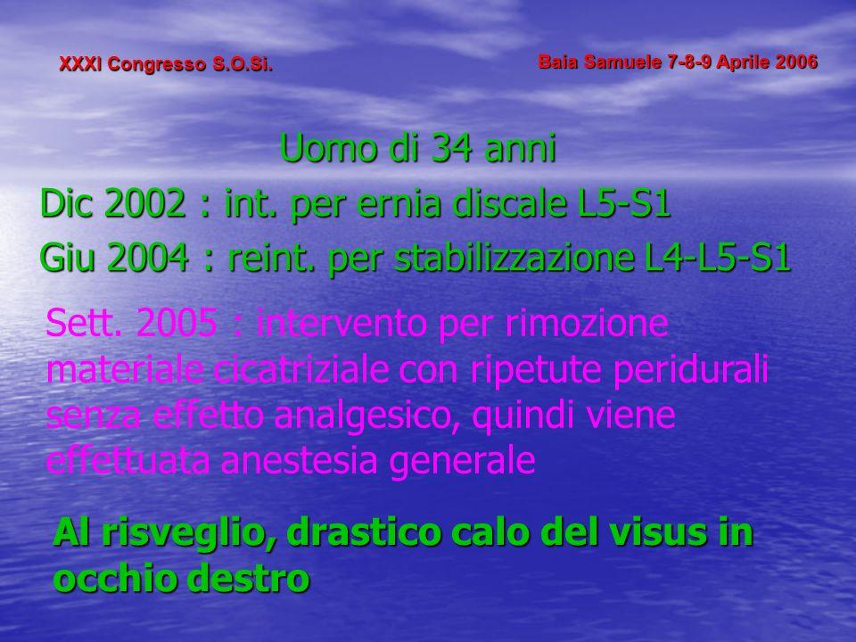 XXXI Congresso S.O.Si. Baia Samuele 7-8-9 Aprile 2006 Uomo di 34 anni Dic 2002 : int. per ernia discale L5-S1 Giu 2004 : reint. per stabilizzazione L4