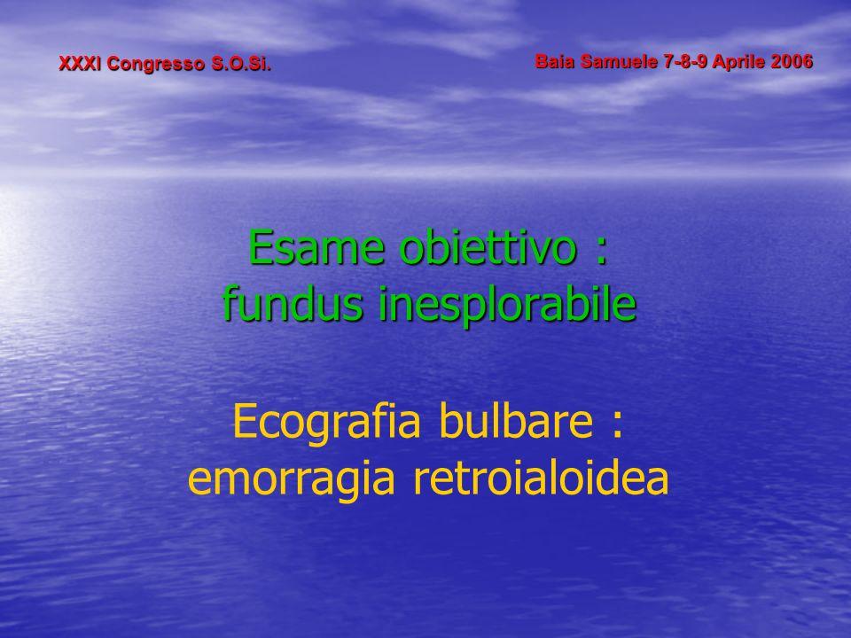 XXXI Congresso S.O.Si. Baia Samuele 7-8-9 Aprile 2006 Esame obiettivo : fundus inesplorabile Ecografia bulbare : emorragia retroialoidea