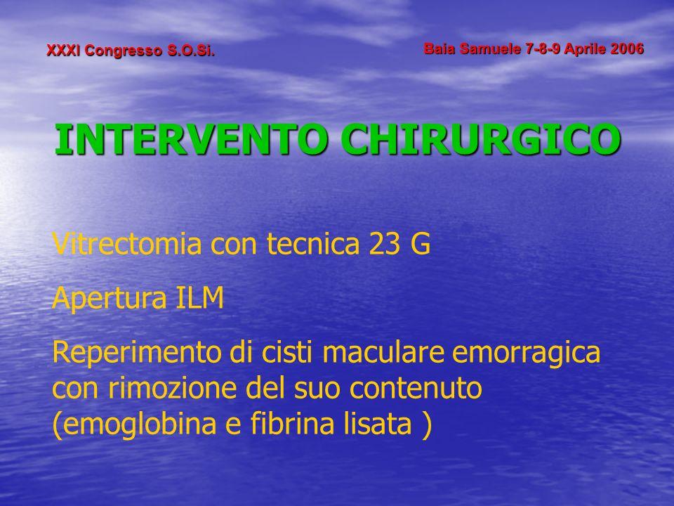XXXI Congresso S.O.Si. Baia Samuele 7-8-9 Aprile 2006 INTERVENTO CHIRURGICO Vitrectomia con tecnica 23 G Apertura ILM Reperimento di cisti maculare em