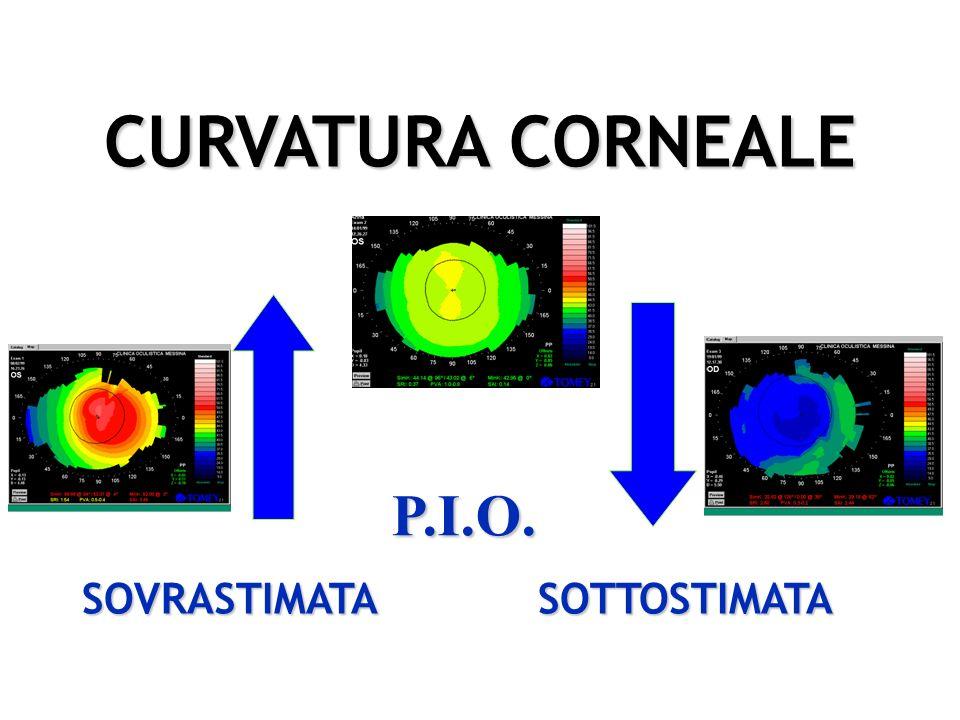 Aderenza dei profili Sensore pressione Non distorsione corneale TONOMETRIA DINAMICA A PROFILO