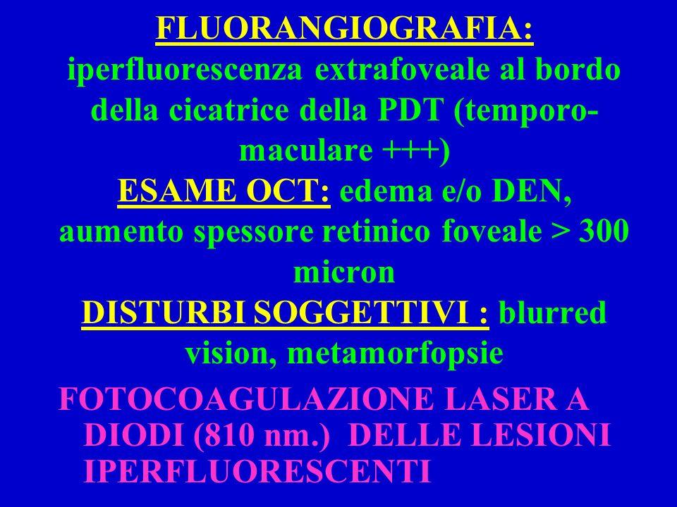 FOTOCOAGULAZIONE LASER A DIODI (810 nm.) DELLE LESIONI IPERFLUORESCENTI FLUORANGIOGRAFIA: iperfluorescenza extrafoveale al bordo della cicatrice della PDT (temporo- maculare +++) ESAME OCT: edema e/o DEN, aumento spessore retinico foveale > 300 micron DISTURBI SOGGETTIVI : blurred vision, metamorfopsie