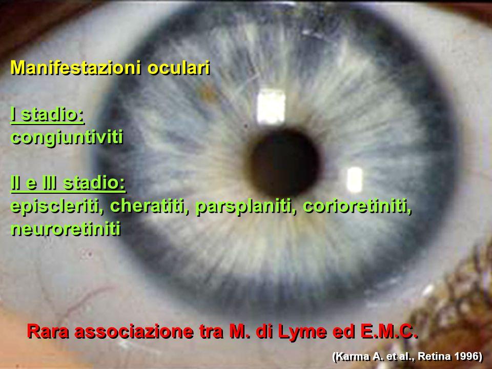 Manifestazioni oculari I stadio: congiuntiviti II e III stadio: episcleriti, cheratiti, parsplaniti, corioretiniti, neuroretiniti Manifestazioni oculari I stadio: congiuntiviti II e III stadio: episcleriti, cheratiti, parsplaniti, corioretiniti, neuroretiniti Rara associazione tra M.