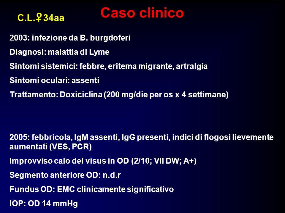 GIUGNO 2005 Visus OD: 2/10; VII DW; A+ IOP: 14 mmHg Spessore foveale: 618 Visus OD: 2/10; VII DW; A+ IOP: 14 mmHg Spessore foveale: 618