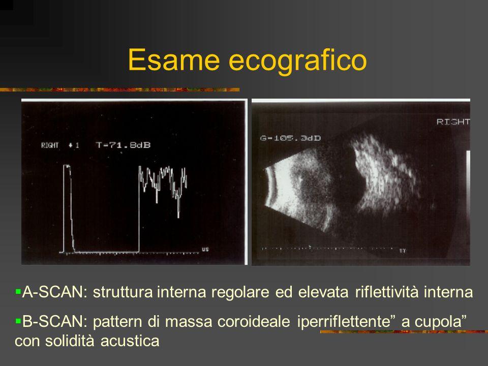 Esame ecografico A-SCAN: struttura interna regolare ed elevata riflettività interna B-SCAN: pattern di massa coroideale iperriflettente a cupola con s