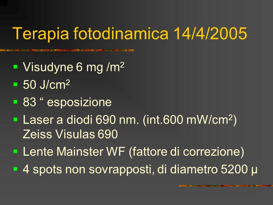 Terapia fotodinamica 14/4/2005 Visudyne 6 mg /m 2 50 J/cm 2 83 esposizione Laser a diodi 690 nm. (int.600 mW/cm 2 ) Zeiss Visulas 690 Lente Mainster W