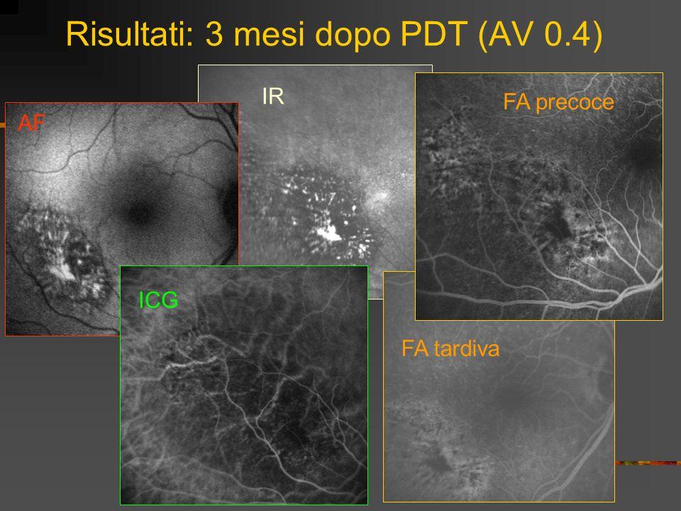 Risultati: 3 mesi dopo PDT (AV 0.4) IR FA precoce 3 mesi post PDT FA tardiva 3 mesi post PDT FA tardiva AF ICG FA precoce