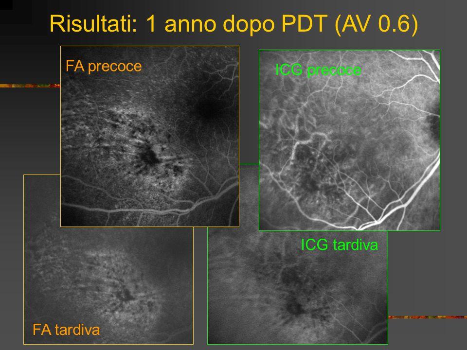 FA tardiva ICG tardiva Risultati: 1 anno dopo PDT (AV 0.6) ICG precoce
