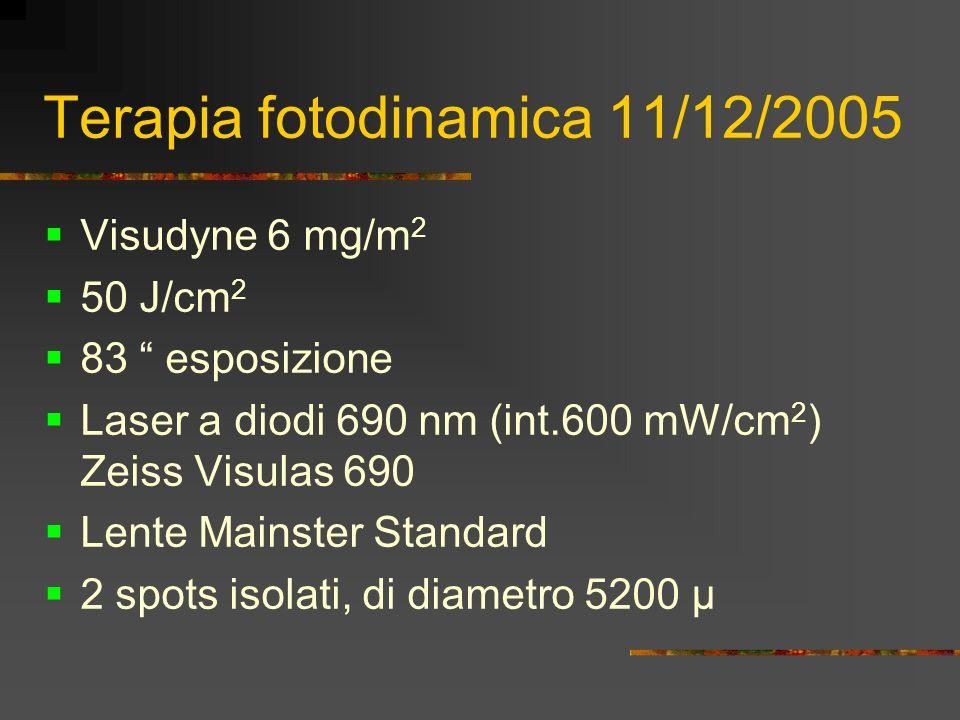 Terapia fotodinamica 11/12/2005 Visudyne 6 mg/m 2 50 J/cm 2 83 esposizione Laser a diodi 690 nm (int.600 mW/cm 2 ) Zeiss Visulas 690 Lente Mainster St