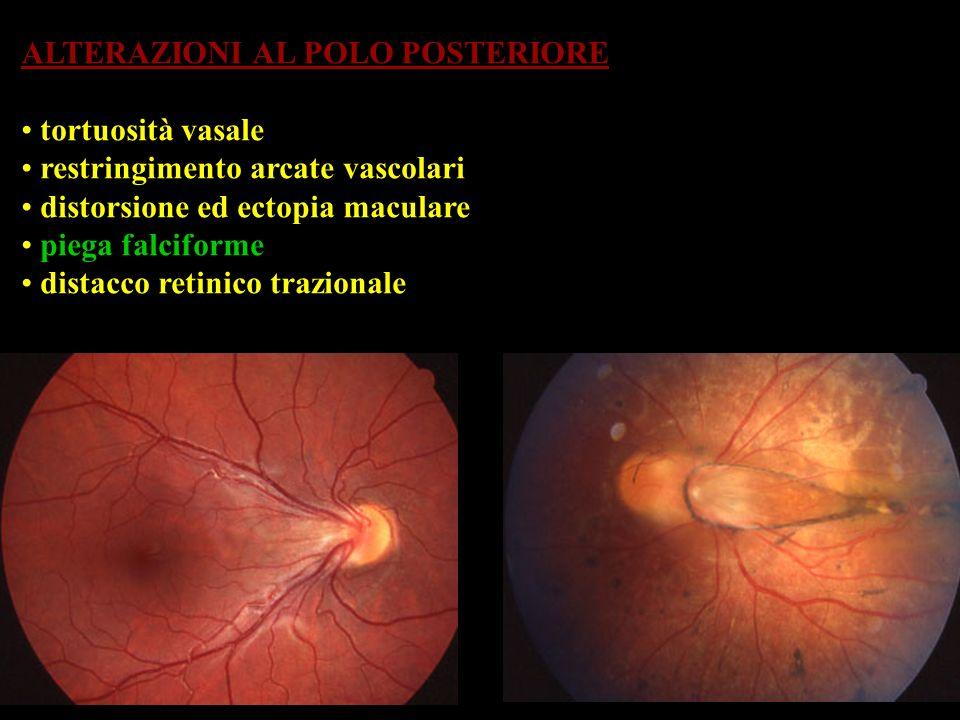 ALTERAZIONI AL POLO POSTERIORE tortuosità vasale restringimento arcate vascolari distorsione ed ectopia maculare piega falciforme distacco retinico tr