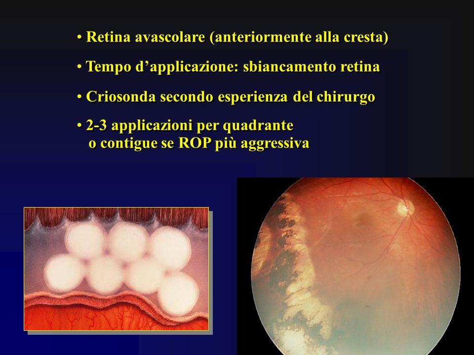 Retina avascolare (anteriormente alla cresta) Tempo dapplicazione: sbiancamento retina Criosonda secondo esperienza del chirurgo 2-3 applicazioni per
