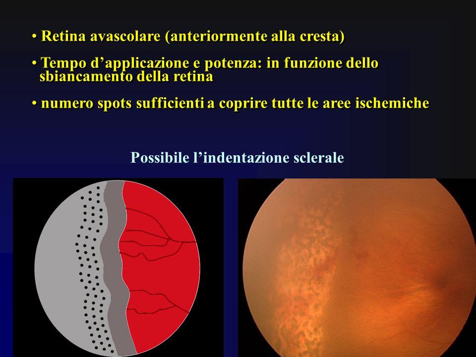 Retina avascolare (anteriormente alla cresta) Tempo dapplicazione e potenza: in funzione dello sbiancamento della retina numero spots sufficienti a co