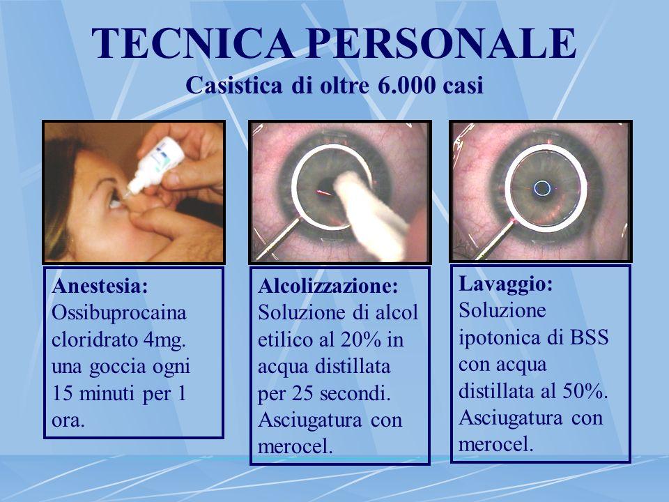 TECNICA PERSONALE Casistica di oltre 6.000 casi Anestesia: Ossibuprocaina cloridrato 4mg. una goccia ogni 15 minuti per 1 ora. Alcolizzazione: Soluzio